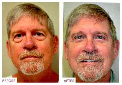 Eyelid Surgery Gallery - Patient 33369909 - Image 2