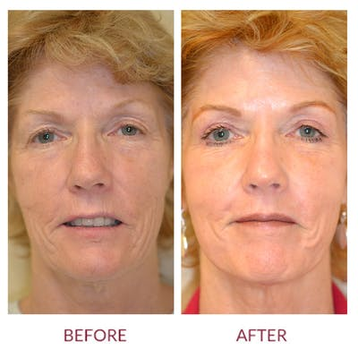 Facelift Gallery - Patient 45453889 - Image 1