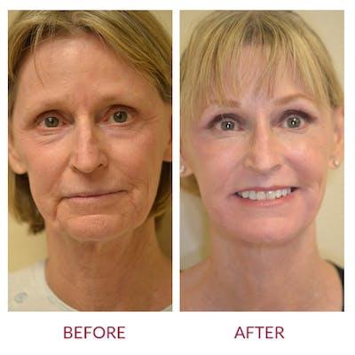 Facelift Gallery - Patient 45453909 - Image 1