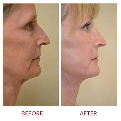 Facelift Gallery - Patient 45453909 - Image 2