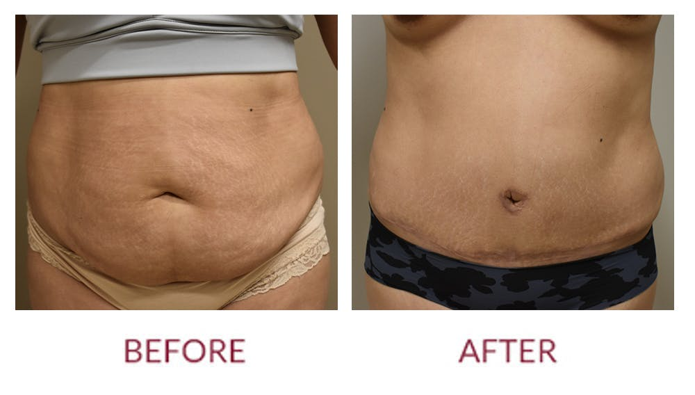 Tummy Tuck Gallery - Patient 45453914 - Image 1