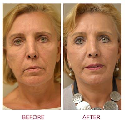 Facelift Gallery - Patient 45453915 - Image 1