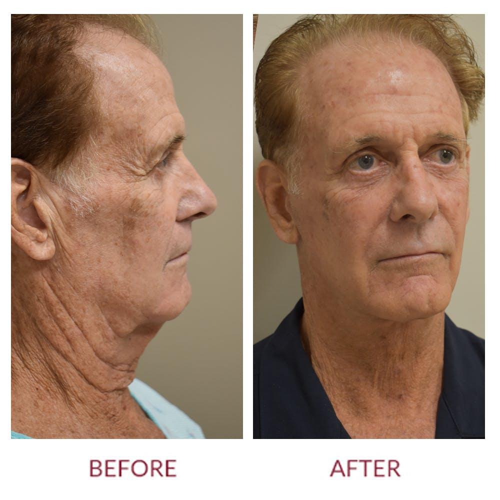 Facelift Gallery - Patient 45453946 - Image 1