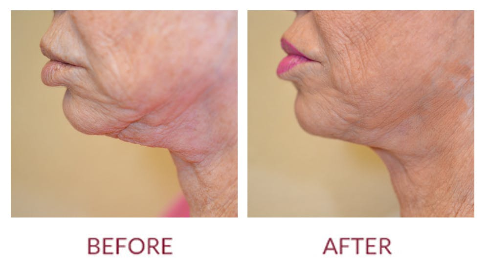 Chin Augmentation Gallery - Patient 45453949 - Image 1