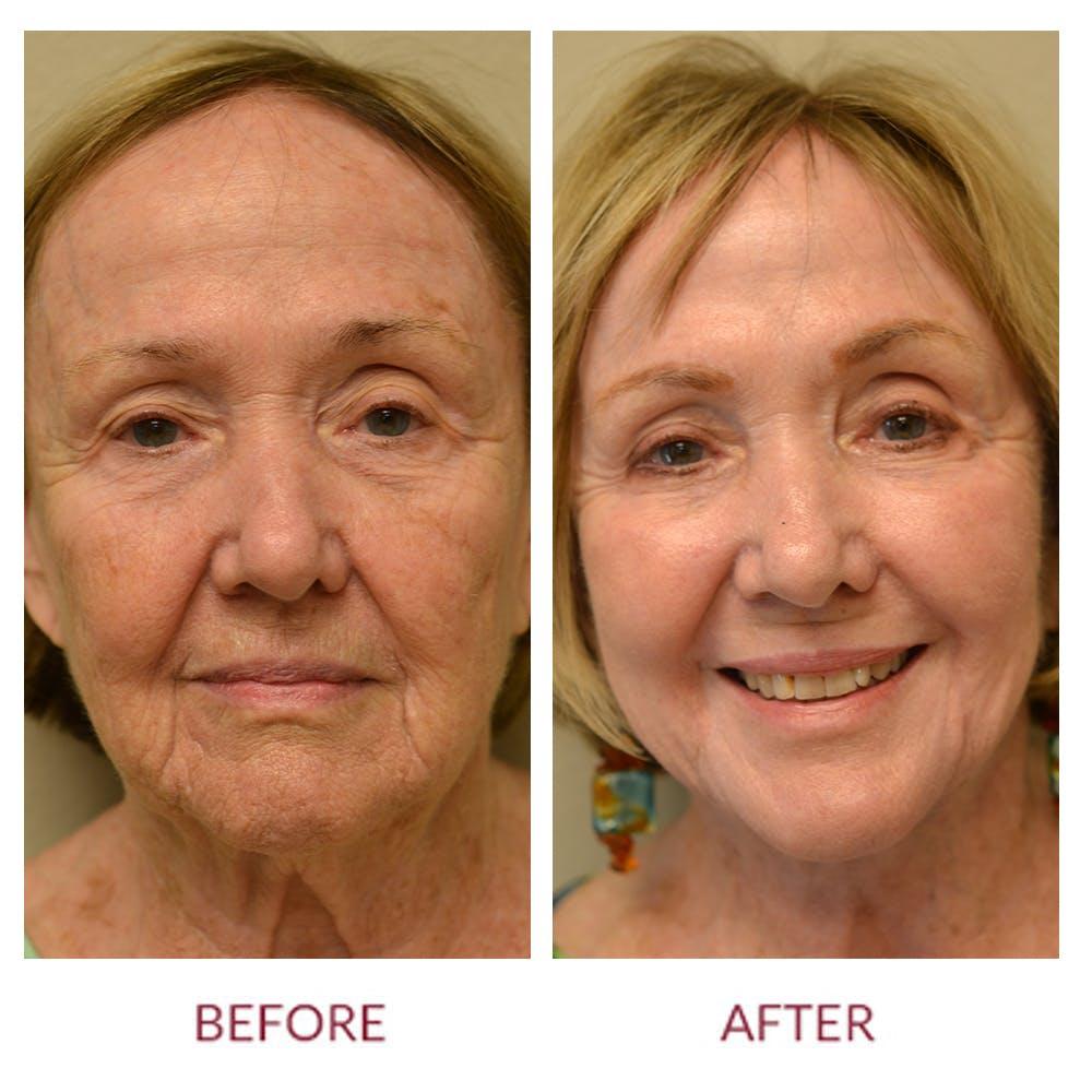 Facelift Gallery - Patient 45454136 - Image 1