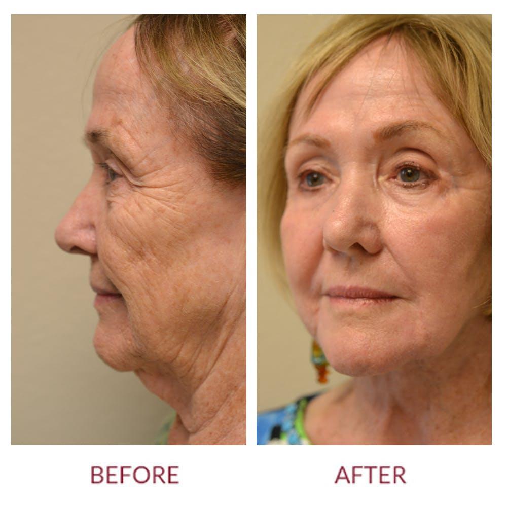 Facelift Gallery - Patient 45454136 - Image 2