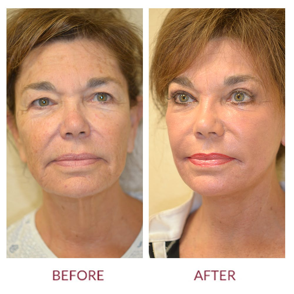 Facelift Gallery - Patient 45454146 - Image 1