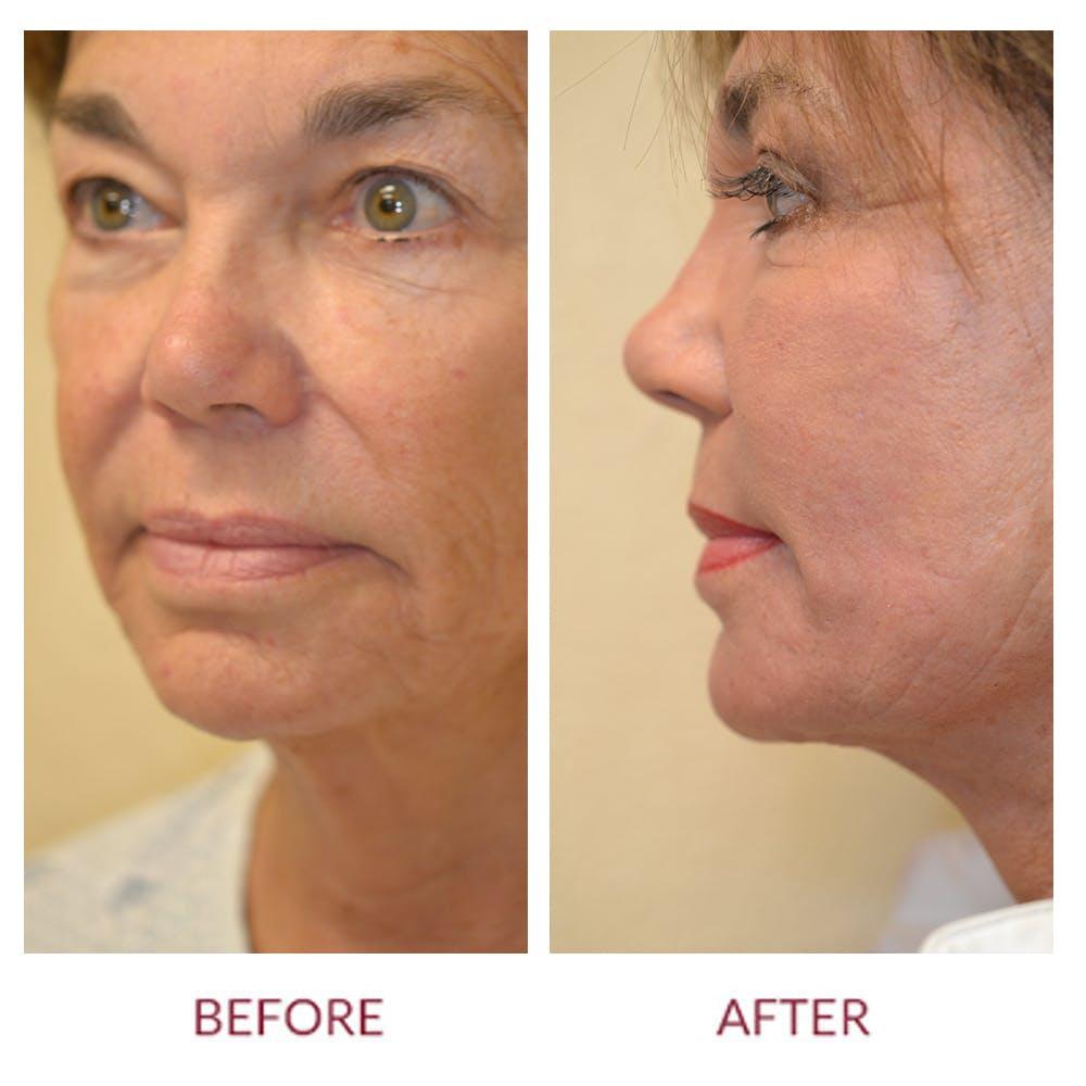 Facelift Gallery - Patient 45454146 - Image 2