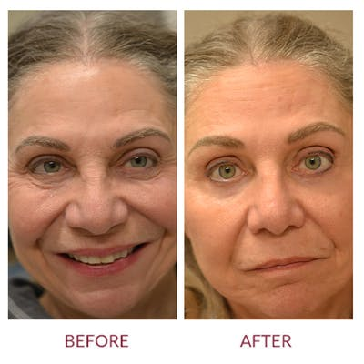 Eyelid Surgery Gallery - Patient 45454150 - Image 1