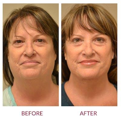 Facelift Gallery - Patient 46142246 - Image 1