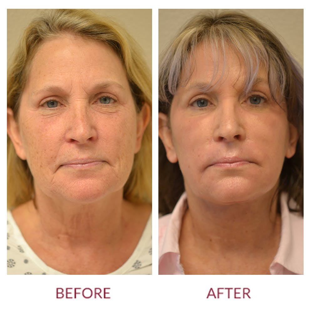 Facelift Gallery - Patient 46142247 - Image 1