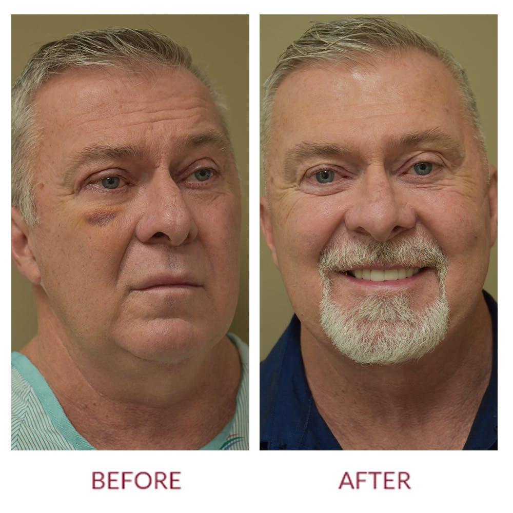 Facelift Gallery - Patient 46142248 - Image 1