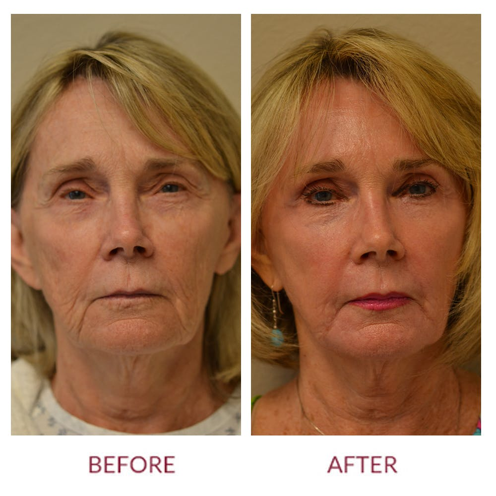 Facelift Gallery - Patient 46142249 - Image 1