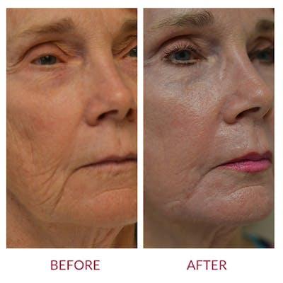 Facelift Gallery - Patient 46142249 - Image 2