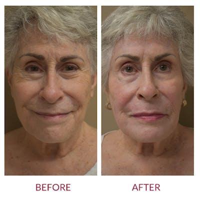 Facelift Gallery - Patient 46142250 - Image 1