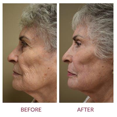 Facelift Gallery - Patient 46142250 - Image 2