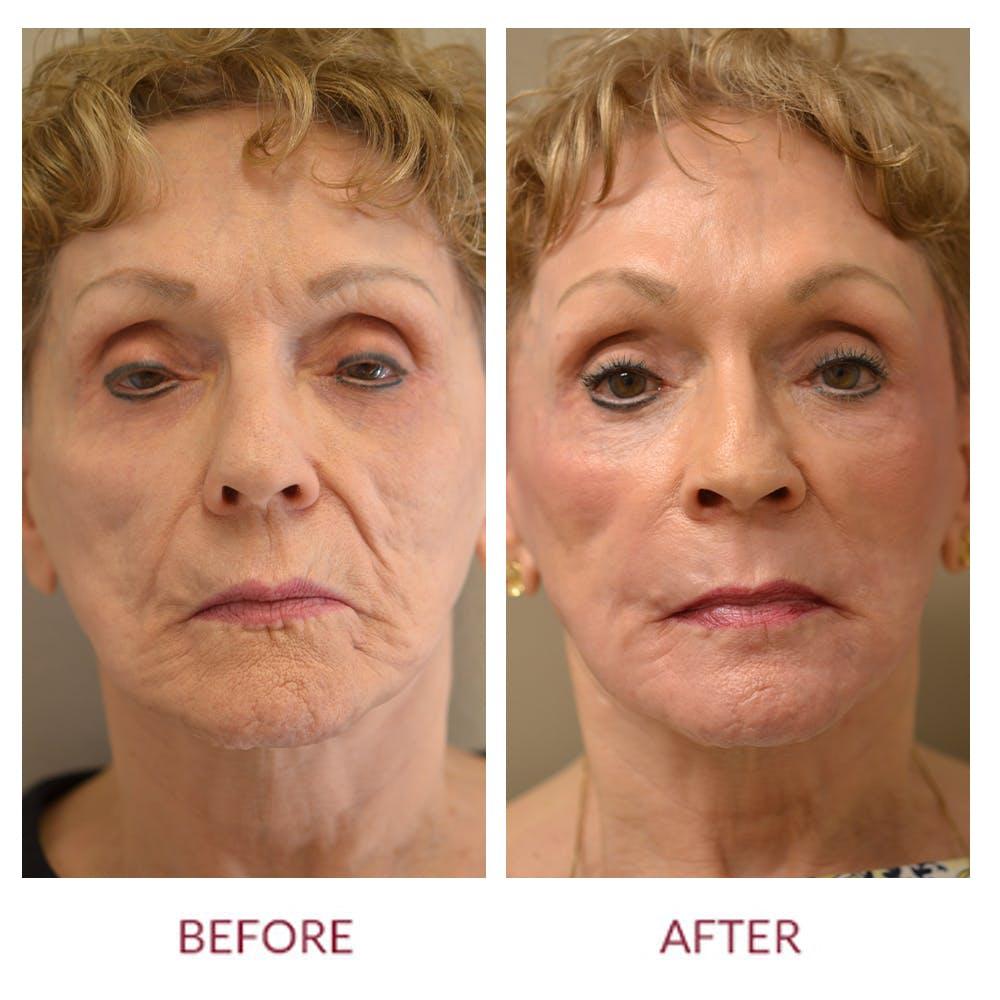Facelift Gallery - Patient 46142251 - Image 1