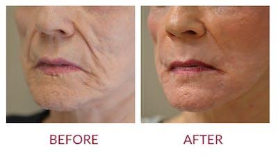 Facelift Gallery - Patient 46142251 - Image 2