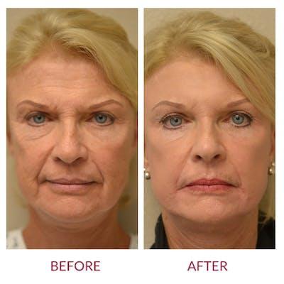 Facelift Gallery - Patient 46142252 - Image 1