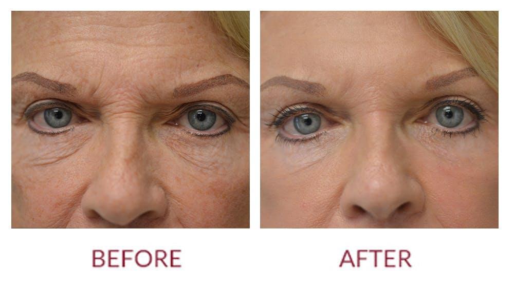 Facelift Gallery - Patient 46142252 - Image 2