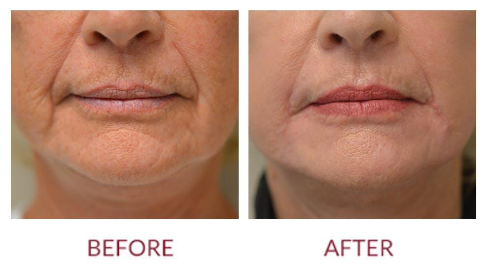 Facelift Gallery - Patient 46142252 - Image 3