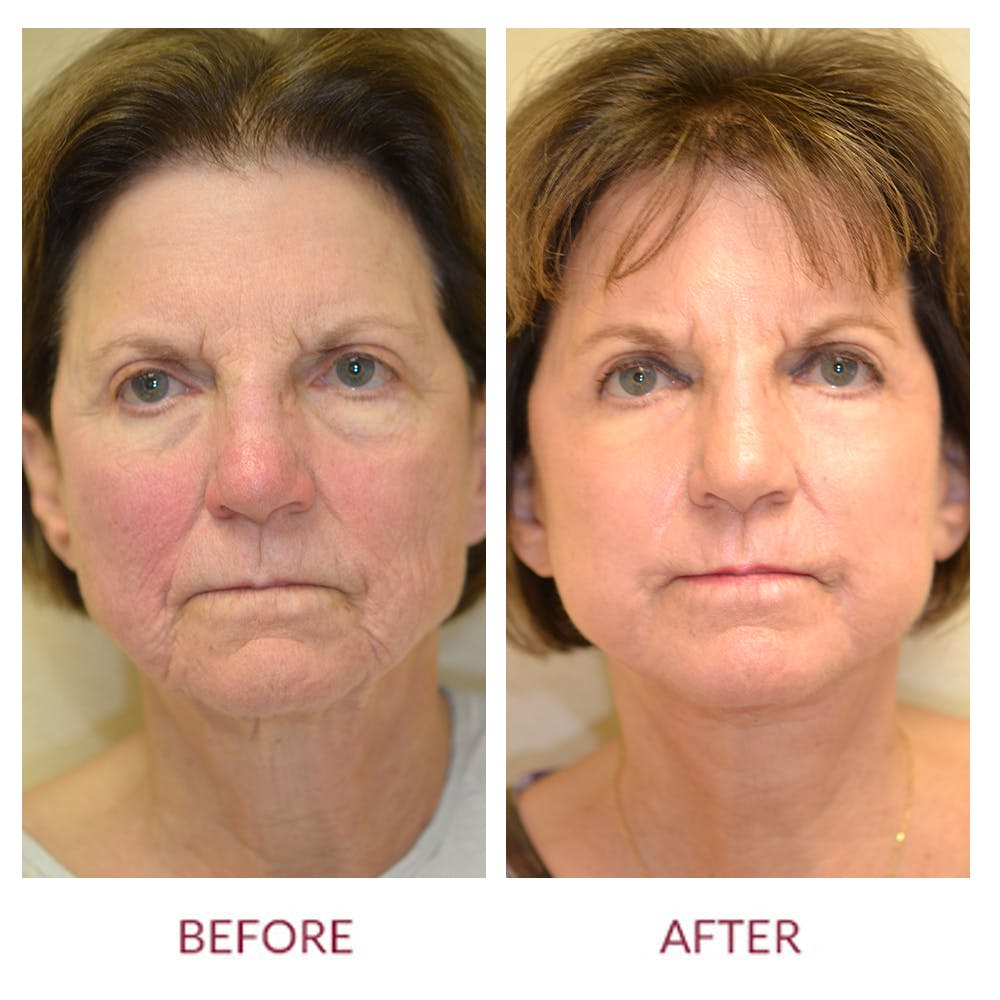 Facelift Gallery - Patient 46142253 - Image 1