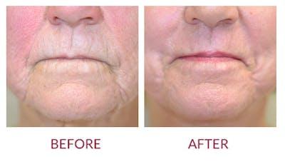 Facelift Gallery - Patient 46142253 - Image 2