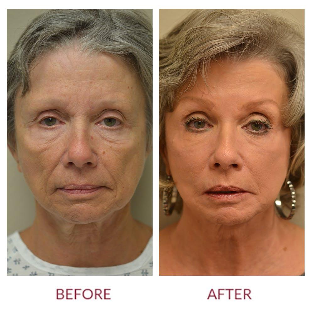 Facelift Gallery - Patient 46142254 - Image 1