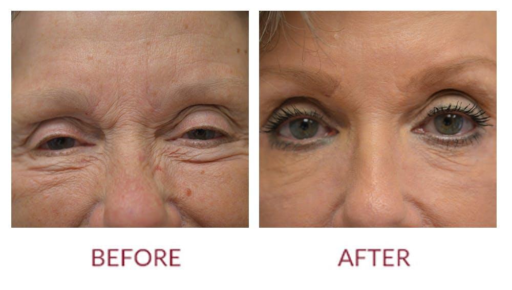 Facelift Gallery - Patient 46142254 - Image 2