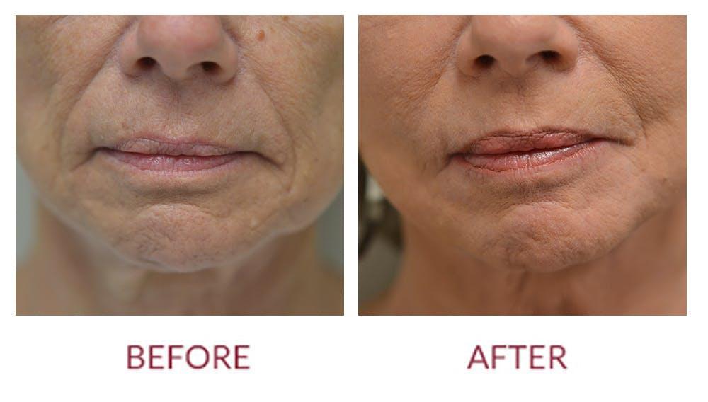 Facelift Gallery - Patient 46142254 - Image 3