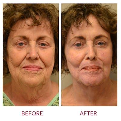Facelift Gallery - Patient 46142255 - Image 1