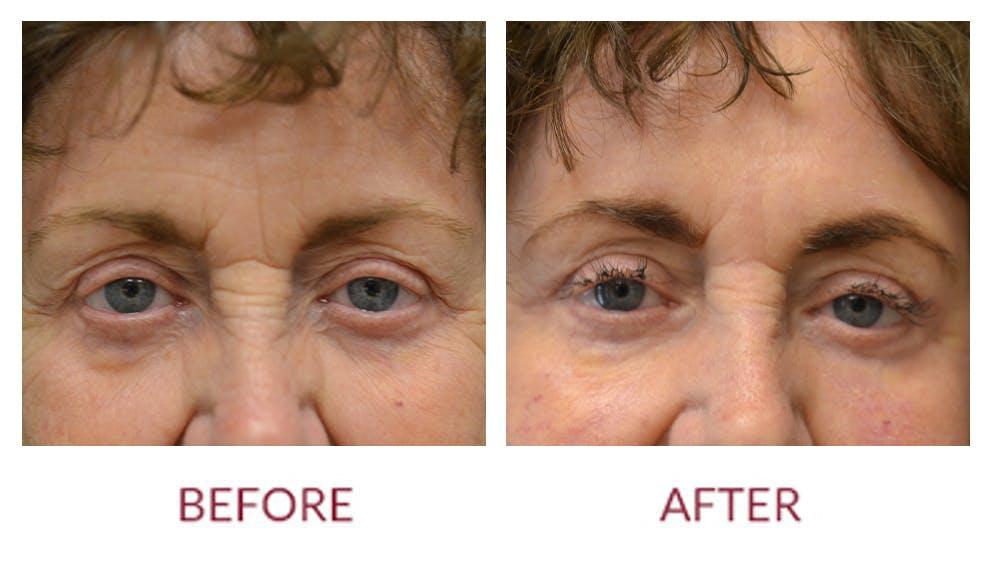 Facelift Gallery - Patient 46142255 - Image 2