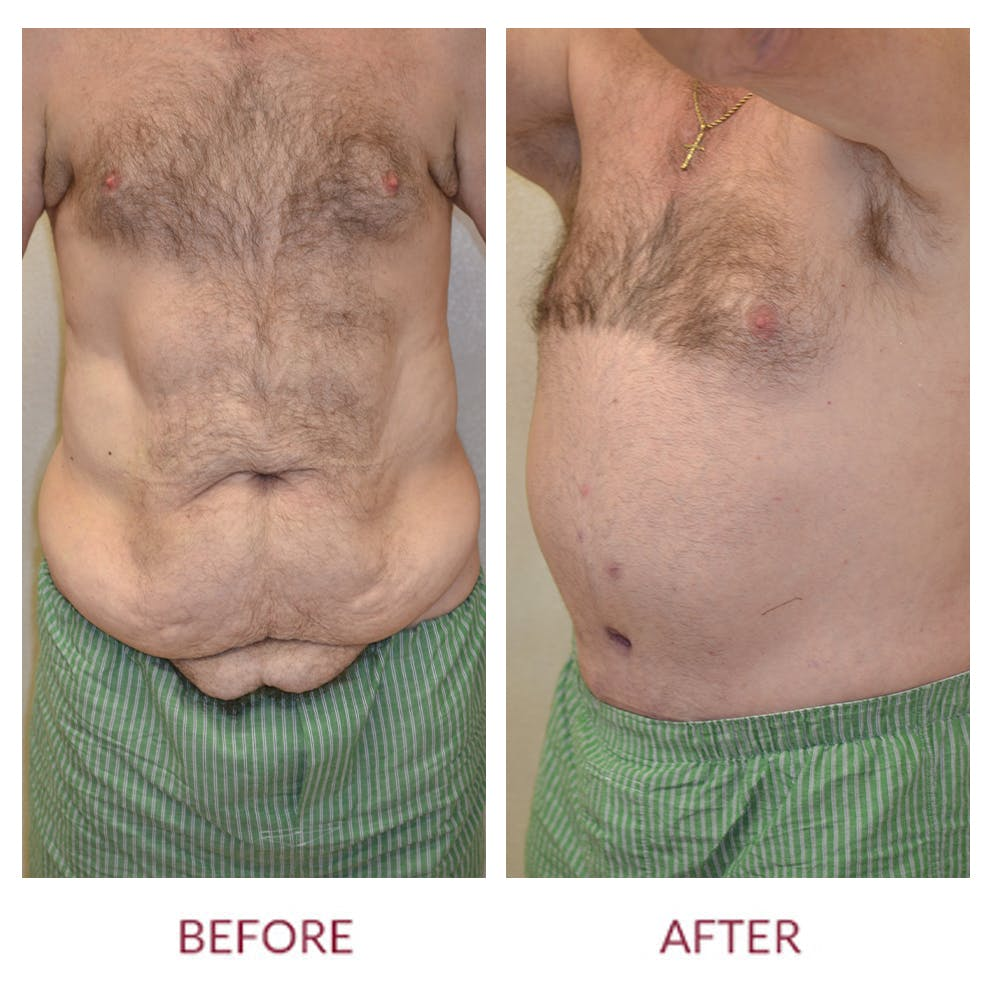 Tummy Tuck Gallery - Patient 46142296 - Image 1