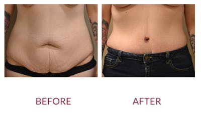 Tummy Tuck Gallery - Patient 46142297 - Image 1