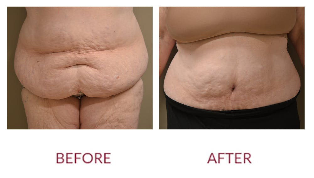 Tummy Tuck Gallery - Patient 46142298 - Image 1