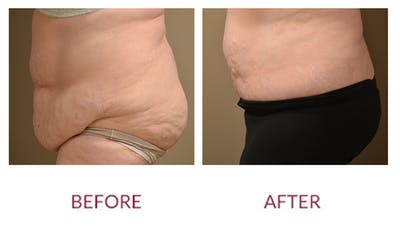 Tummy Tuck Gallery - Patient 46142298 - Image 2