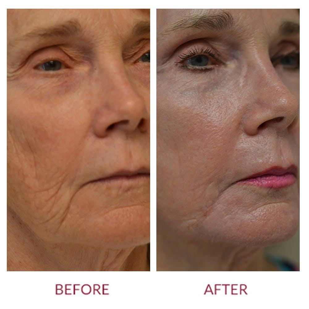 Laser Resurfacing Gallery - Patient 46165579 - Image 2