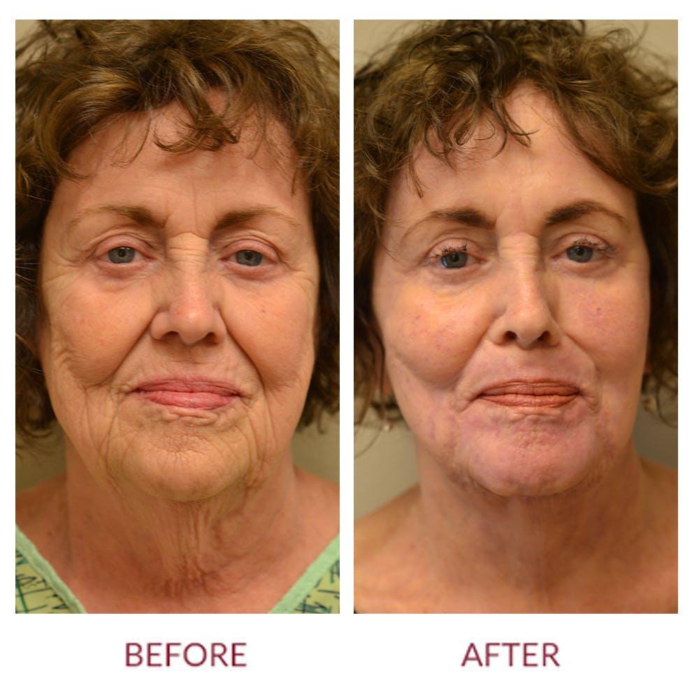 Laser Resurfacing Gallery - Patient 46165597 - Image 1