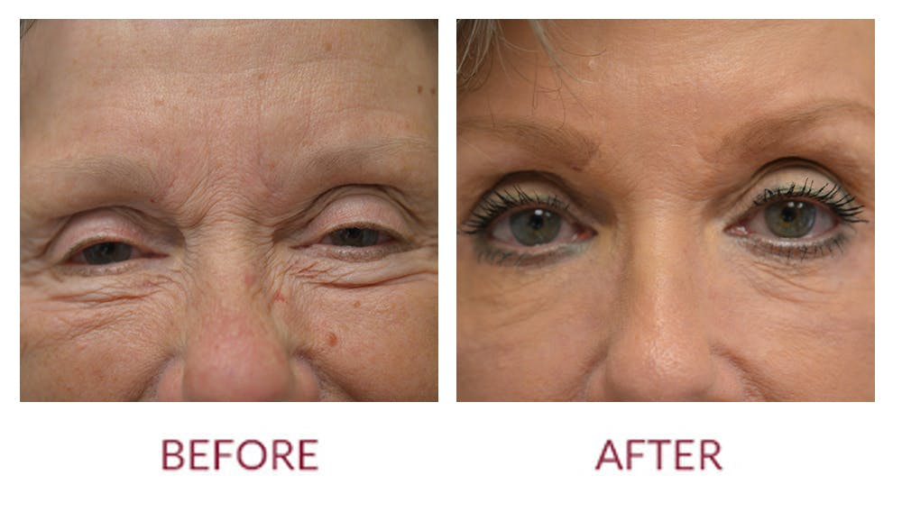 Eyelid Surgery Gallery - Patient 46165604 - Image 2