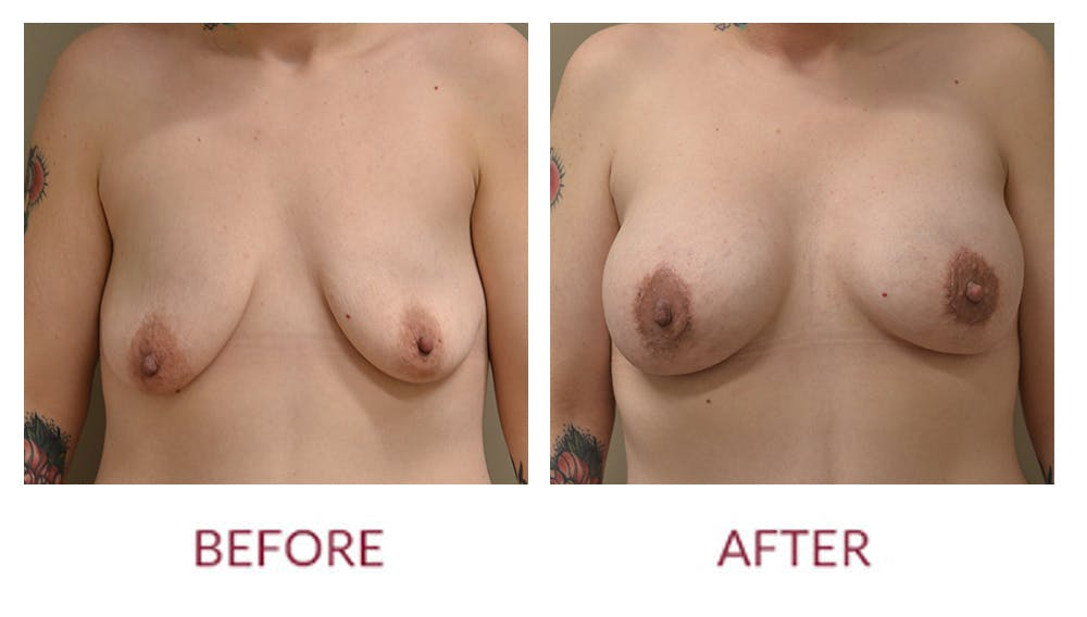 Breast Augmentation Gallery - Patient 46165611 - Image 1