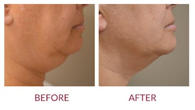 Chin Augmentation Gallery - Patient 46165616 - Image 1
