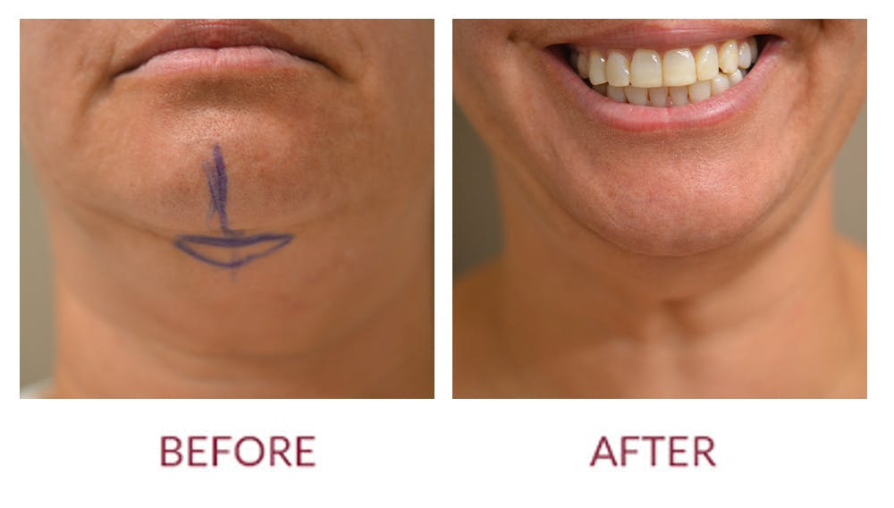 Chin Augmentation Gallery - Patient 46165616 - Image 2