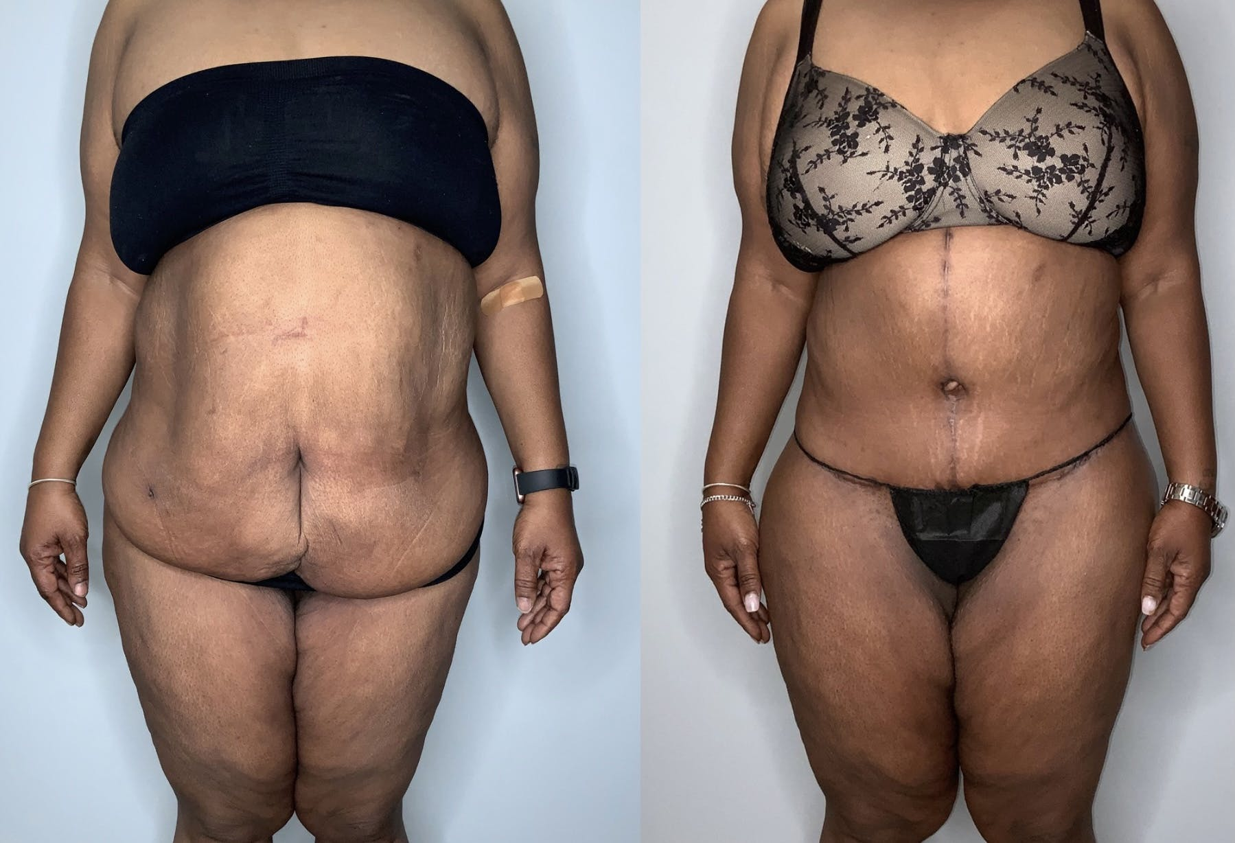 Tummy Tuck Gallery - Patient 53240304 - Image 1