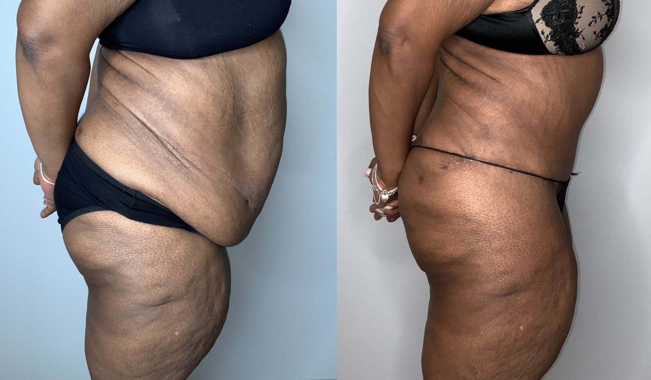 Tummy Tuck Gallery - Patient 53240304 - Image 2