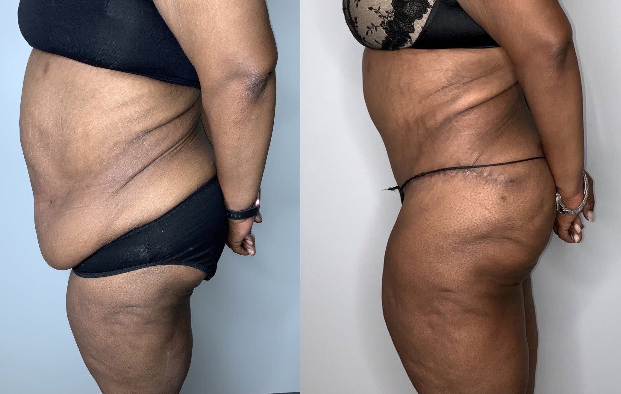 Tummy Tuck Gallery - Patient 53240304 - Image 3