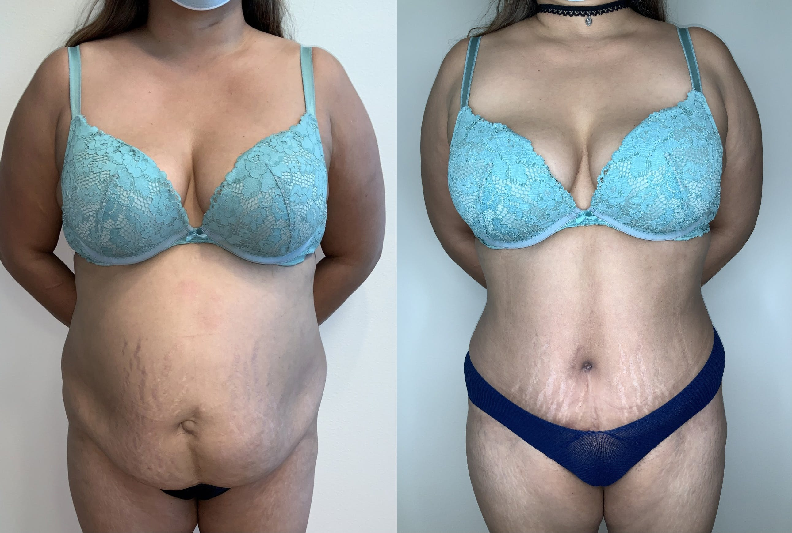Tummy Tuck Gallery - Patient 54039195 - Image 1