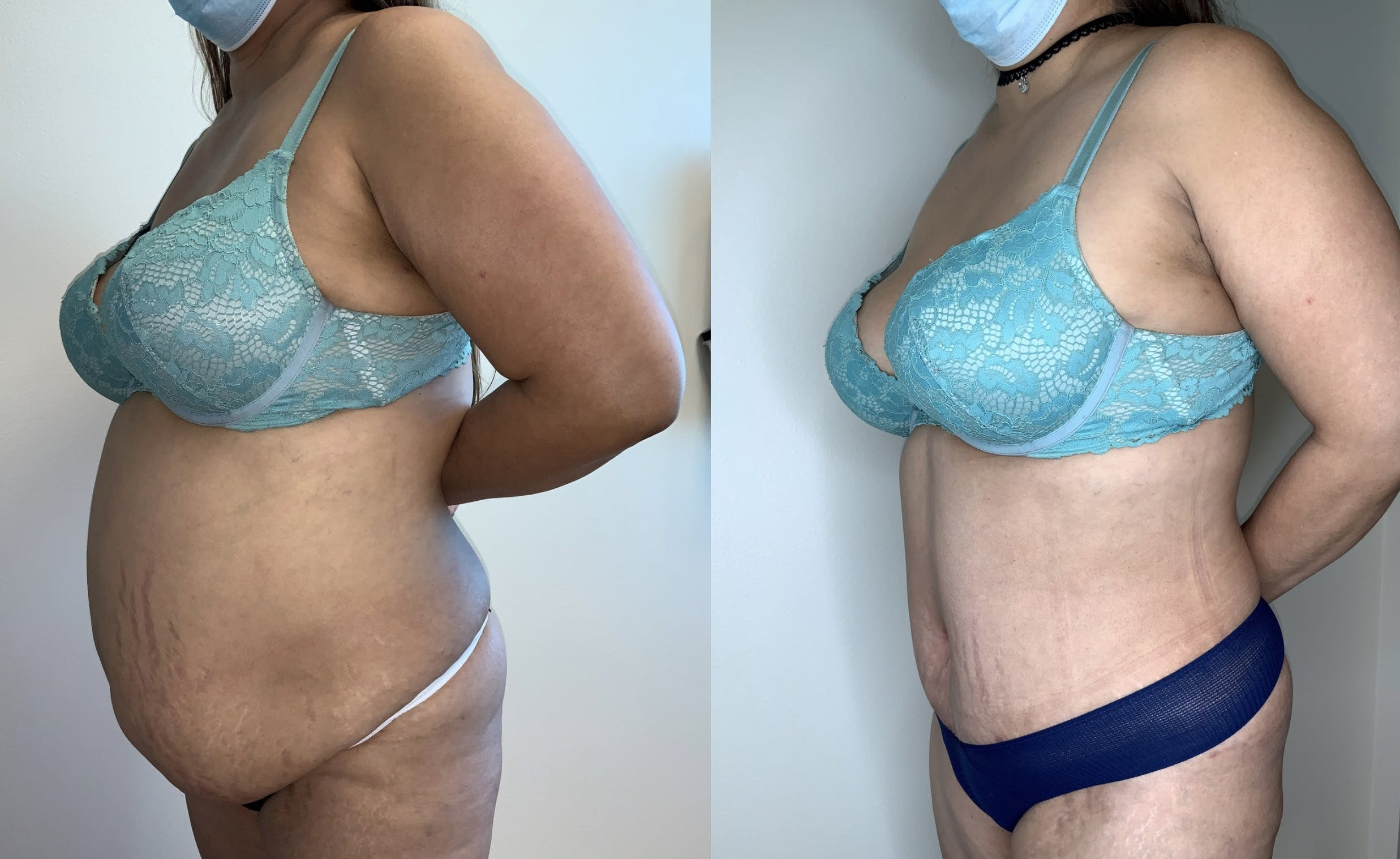 Tummy Tuck Gallery - Patient 54039195 - Image 2