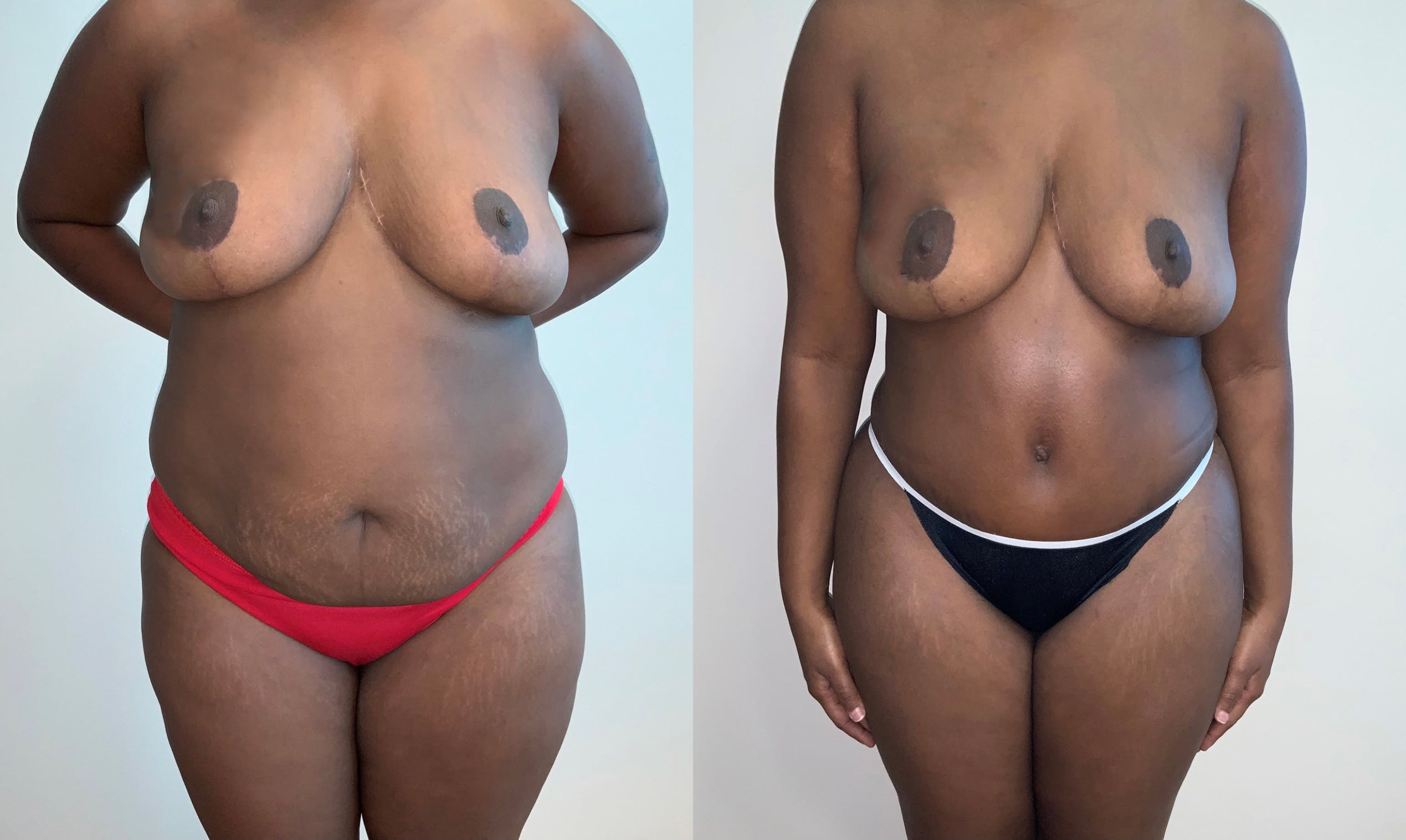 Tummy Tuck Gallery - Patient 54039383 - Image 1