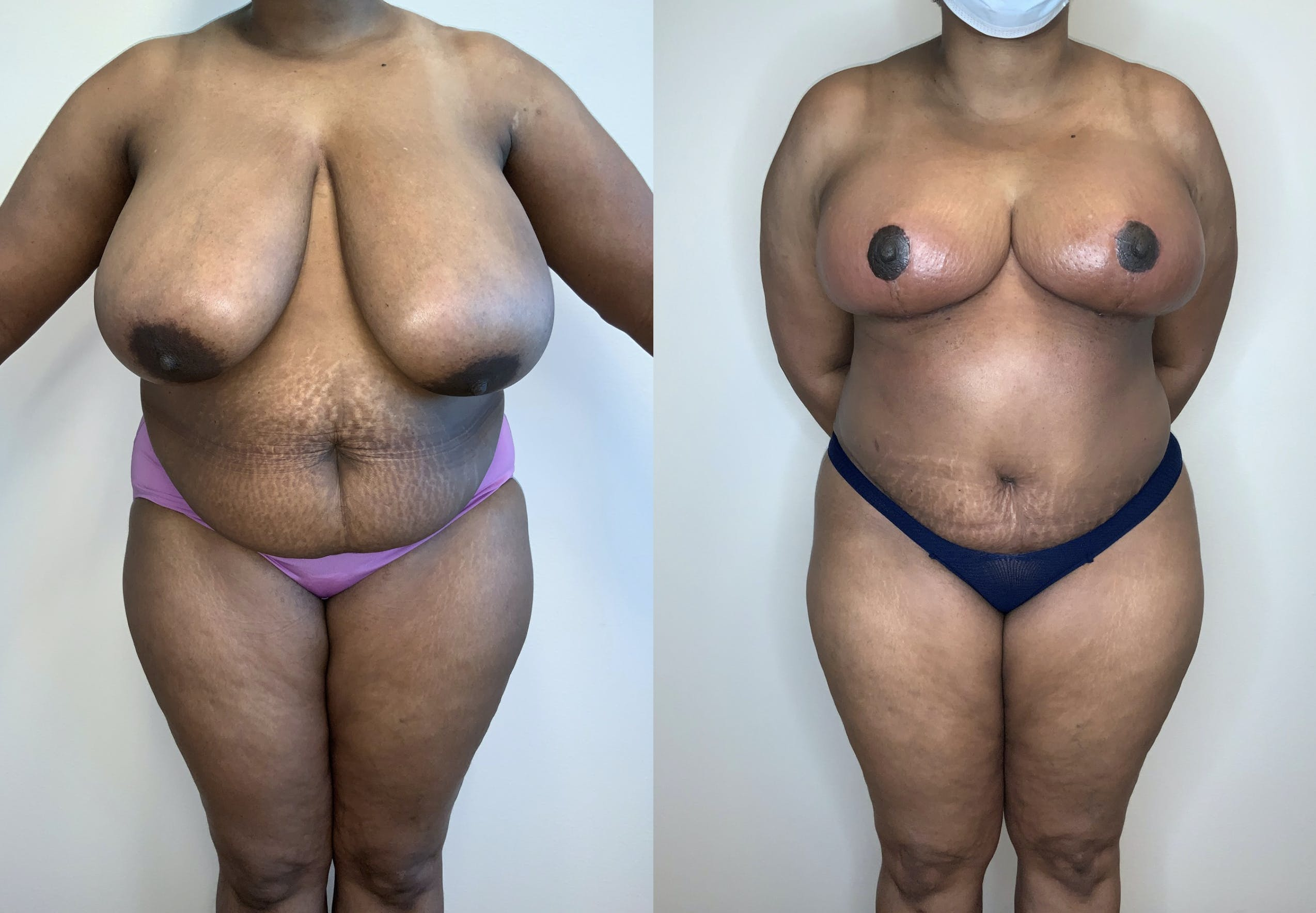 Tummy Tuck Gallery - Patient 54039384 - Image 1