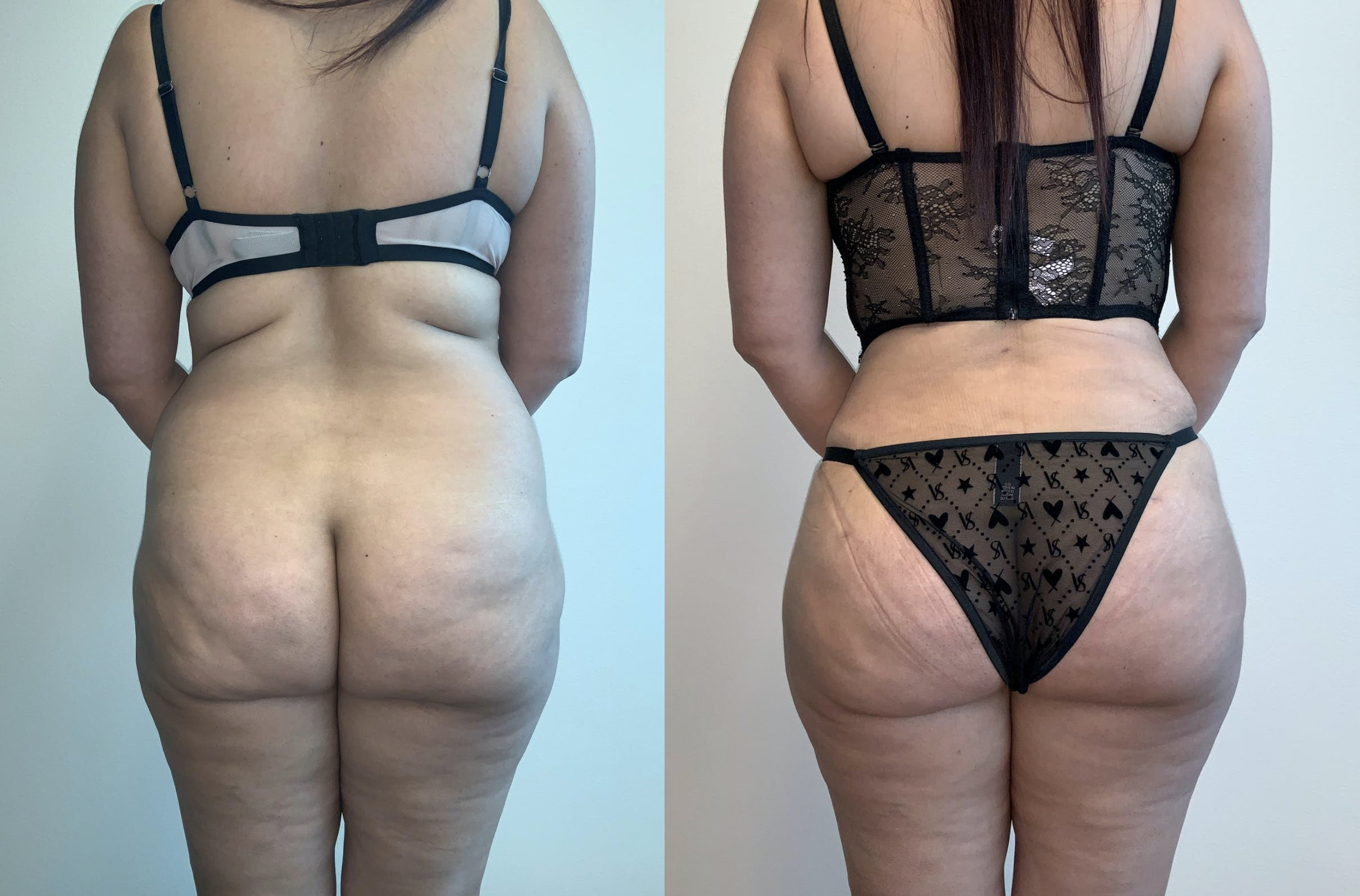 Tummy Tuck Gallery - Patient 54039385 - Image 3